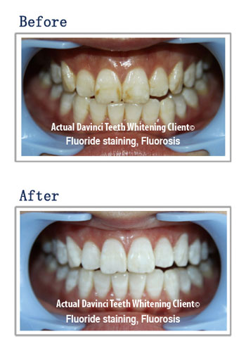 organic teeth whitening before and after using DaVinci teeth whitening product