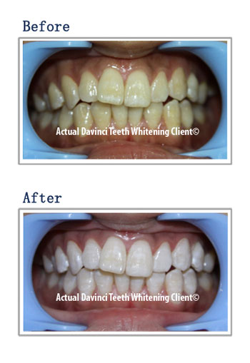 organic teeth whitening before and after using DaVinci teeth whitening products