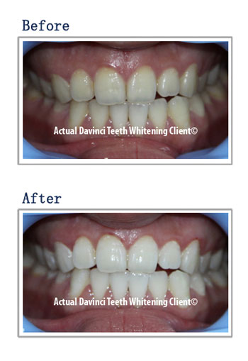 organice teeth whitening before and after using DaVinci teeth whitening products